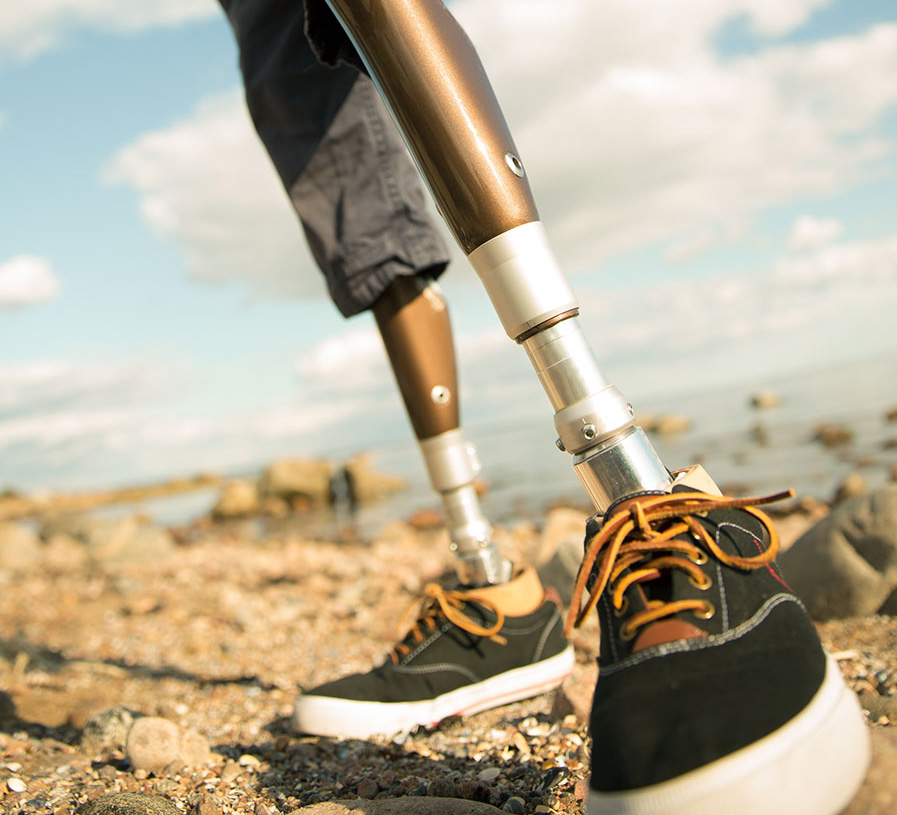 long picture of an amputees prosthetic legs